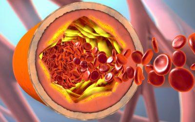 Proces razvoja ateroskleroze i njene posljedice