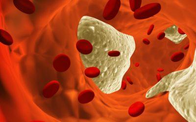 Zašto smanjiti masnoće u krvi i očistiti krvne žile